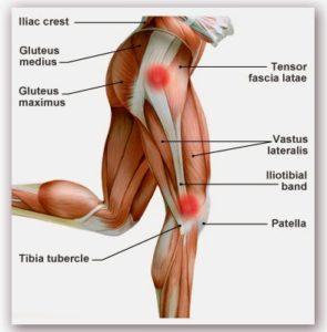 fáj a térd külső része