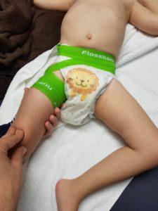 öröklődnek az ízületi betegségek fájdalom a lábban és az ízületekben